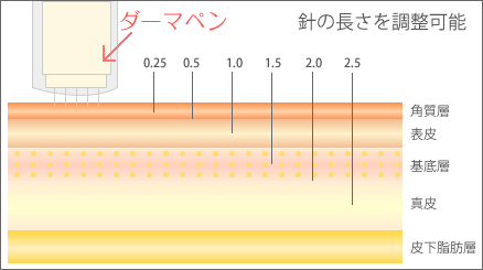 ダーマペンの特徴