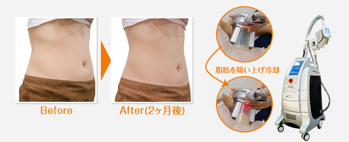 Before After(2ヶ月後) 脂肪を吸い上げ冷却