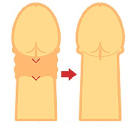 包茎のデメリットや女性の本音、効率的な治療方法