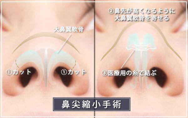 鼻尖縮小手術の方法