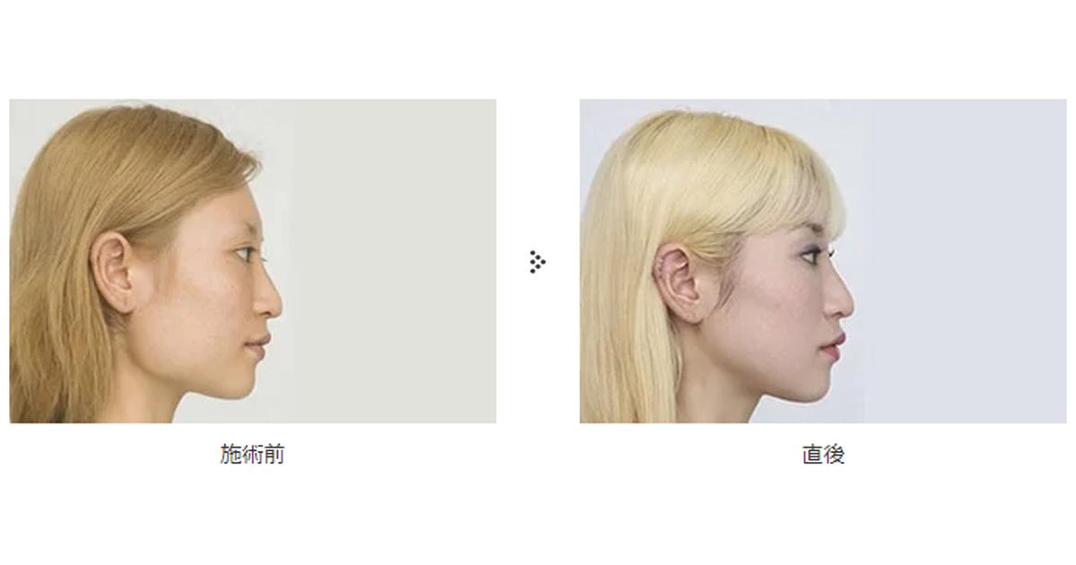 顔のエラを削る骨切り手術について解説 | 共立美容外科